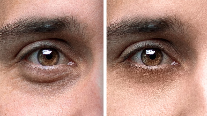 Remove Eyebags in Photoshop